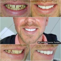 Zirconium Crowns for Smile Makeover