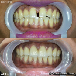 Natural looking porcelain veneers - crowns