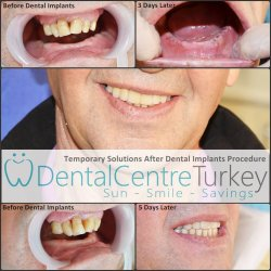 Dental implants with Dental Centre Turkey