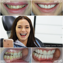Dental Veneers in Turkey, Antalya dental.