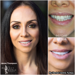 Jenna Thompson visited us for her Smile Makeover with Laminate Veneers. We absolutely love the end result!