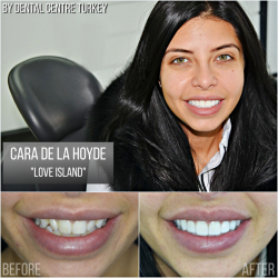 Cara De La Hoyde visited Dental Centre Turkey