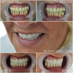 Dental Crowns in Turkey with Dental Centre Turkey
