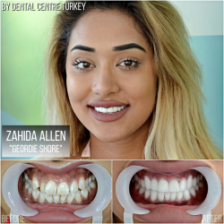 Zahida Allen visited Dental Centre Turkey