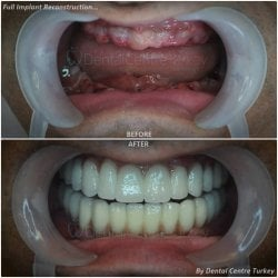 Dental implants recontruction in turkey, antalya, istanbul, fethiye, marmaris