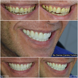 Full smile restoration in Turkey