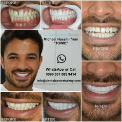 Michael Hassini had his Smile Makeover in Turkey