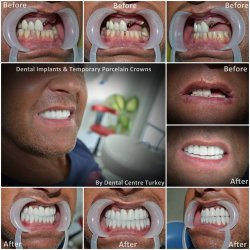 Dental implants for upper jaw in Turkey