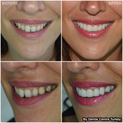 Gum Contouring and Smile Makeover in Turkey