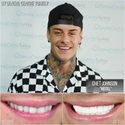 Chet Johnson visited Dental Centre Turkey
