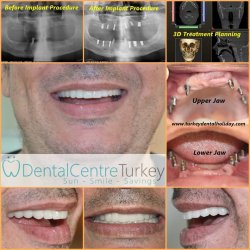 Full tooth reconstruction with dental implants in turkey