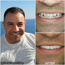 Smile Makeover by Dental Centre Turkey