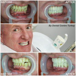 affordable dental implants turkey