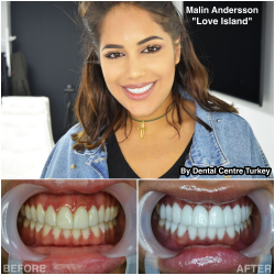 Malin Andersson visited Dental Centre Turkey