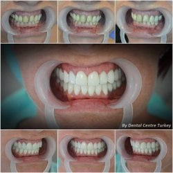 Affordable porcelain veneers and implants in turkey