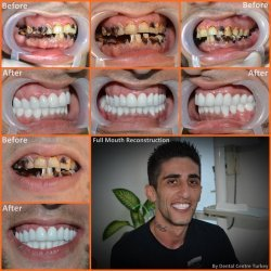 This patient needed a total of 19 Root Canal Treatments, 21 Core Build Ups, 9 Dental Posts and 25 Zirconium Crowns to restore his smile.