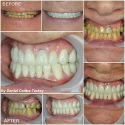 Dental Implants with metal fused porcelain crowns in turkey
