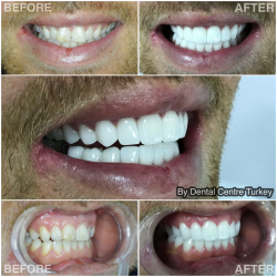 An other Fabulous Smile Makeover in Turkey by Dental Centre Turkey