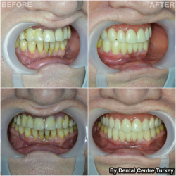Dental Bridge and Dentures in Turkey