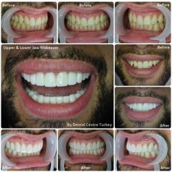 Smile Makeover with 20 e.max Crowns.