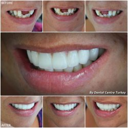 dental bridges closing the tooth gap turkey