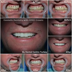 emax veneers with smile design technology in turkey
