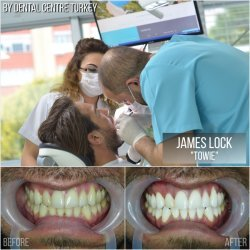 James Lock visited Dental Centre Turkey
