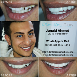Laminate Veneers Turkey - Junaid Ahmed