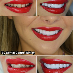 veneers in turkey by best dentist
