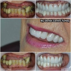 Dental Implants in Turkey with Dental Centre Turkey