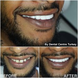 A spectacular upper jaw transformation to close the gaps between teeth