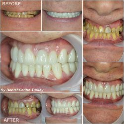 Dental Implants and porcelain crowns in turkey