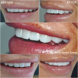 laminate veneers in turkey