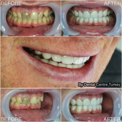 Discoloured teeth transformation