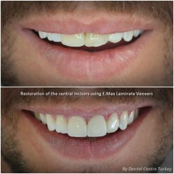 laminate veneers in turkey for reality tv people