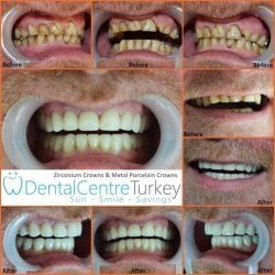 Dental Facelift with crowns to restore teeth