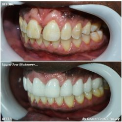zirconium porcelain crowns - full veneers in turkey