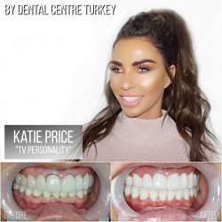 Katie Price visited Dental Centre Turkey.
