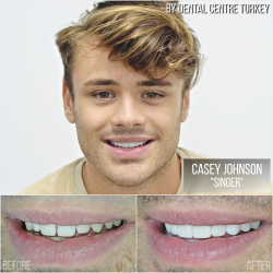 Casey Johnson visited Dental Centre Turkey