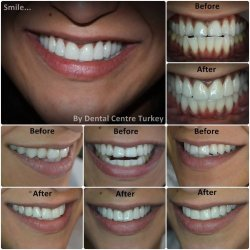 Cerec Crowns in Turkey for bite correction to overbite