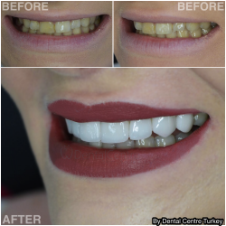 A fuller whiter smile line. Fabulous end result! by Dental Centre Turkey