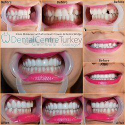 Smile makeover with dental bridge in turkey, abroad