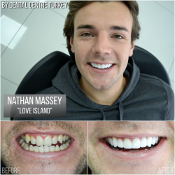 Nathan Massey visited Dental Centre Turkey