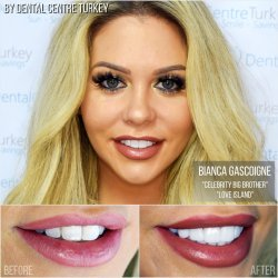Bianca Gascoigne visited Dental Centre Turkey