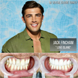 Jack Fincham from Love Island visited Dental Centre Turkey for Pearly Whites Veneers