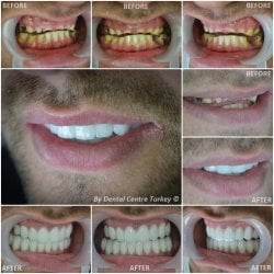 A dental transformation that has not only reestablished the patients smile line but is also life changing in terms of appearance and dental function.