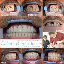 How to close gaps with dental bridge in turkey
