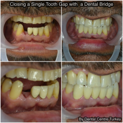 Closind a Single Tooth Gap with a Dental Bridge