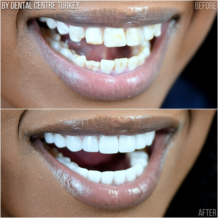 Dental Centre Turkey - Before-After 1