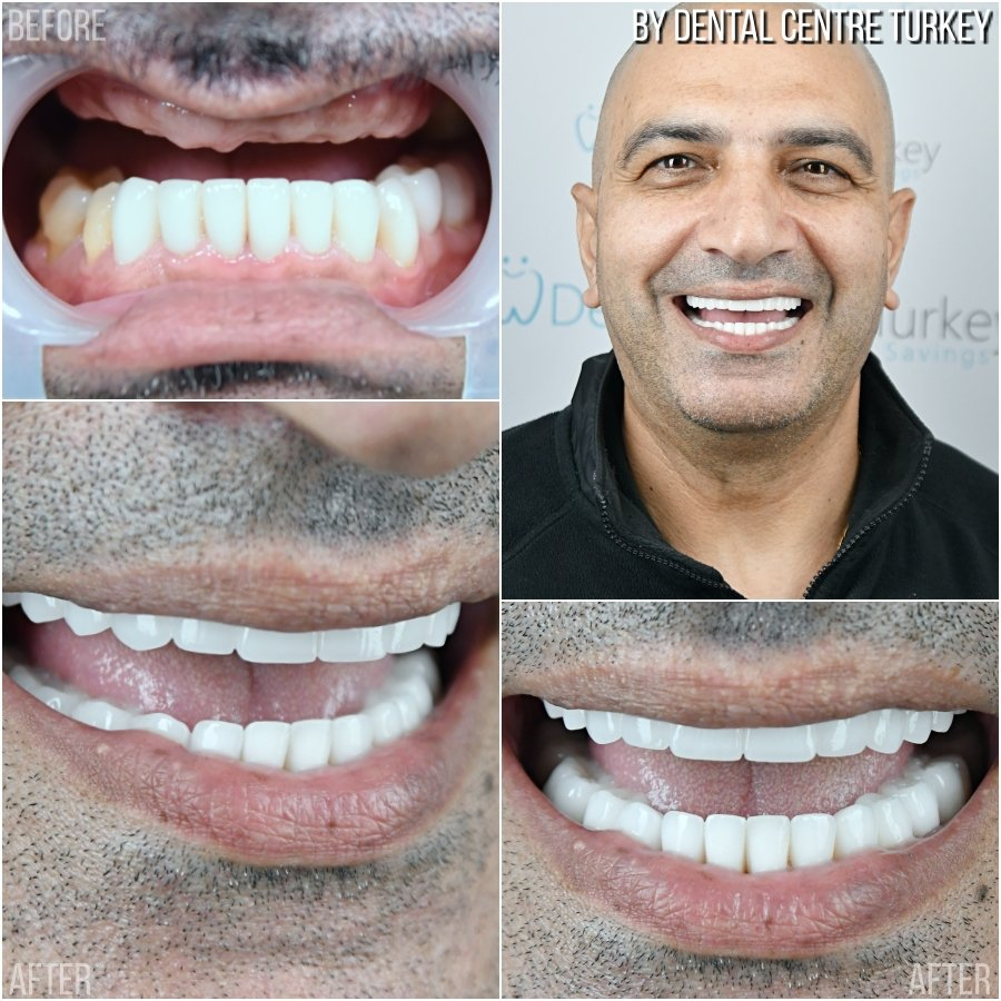 Dental Centre Turkey - Before-After 2